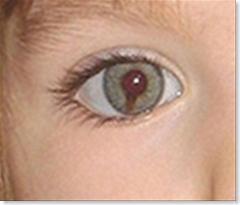 Maddie's distinctive right eye